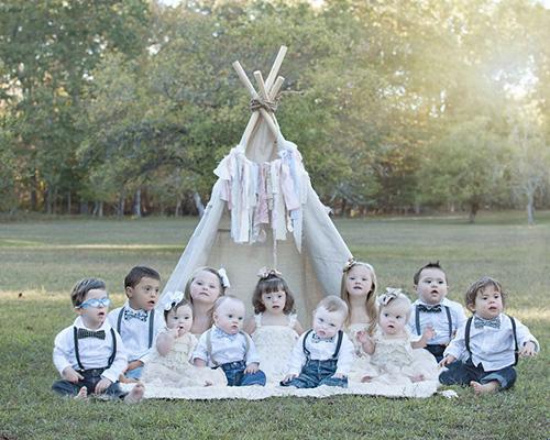 Една трогателна фотосесия, която показва красивите деца със синдром на Даун