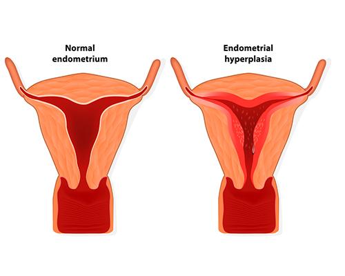 Как ендометриозата пречи да забременея?
