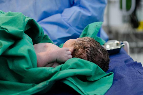 По какво се различават бебетата, родени с операция от останалите
